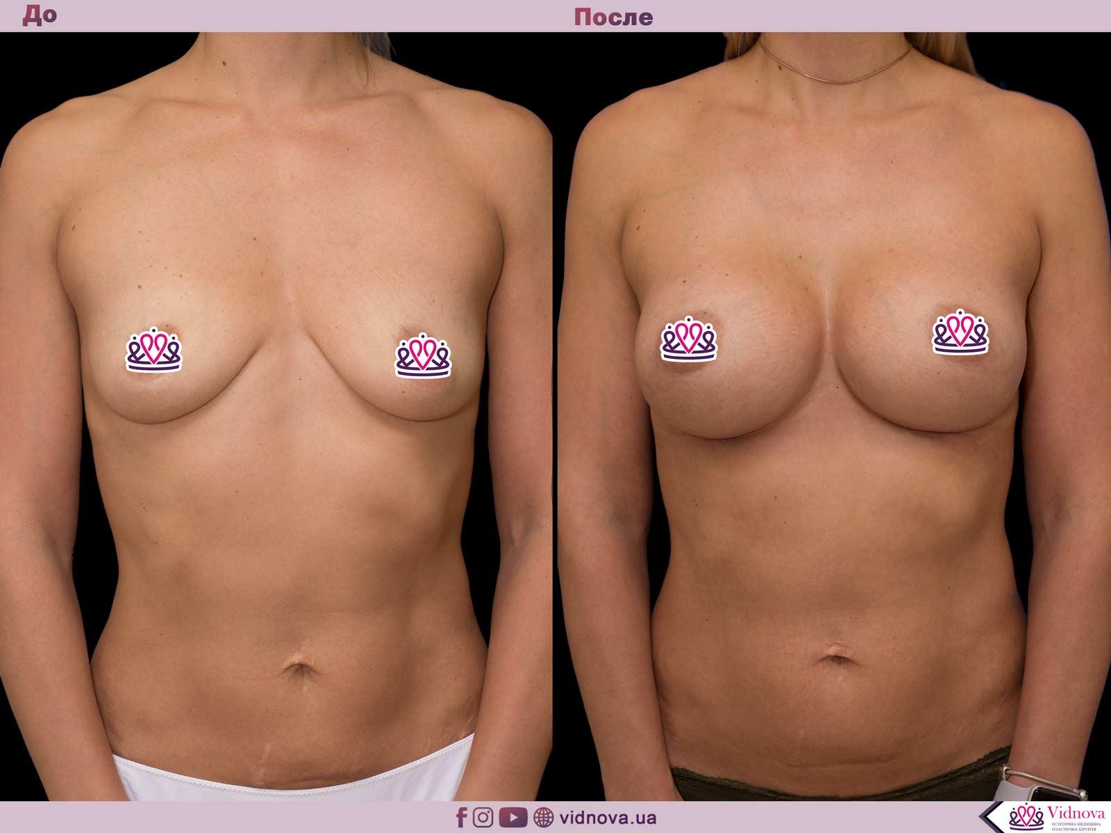 Увеличение груди: Фото ДО и ПОСЛЕ - Пример №35-1 - Клиника Vidnova