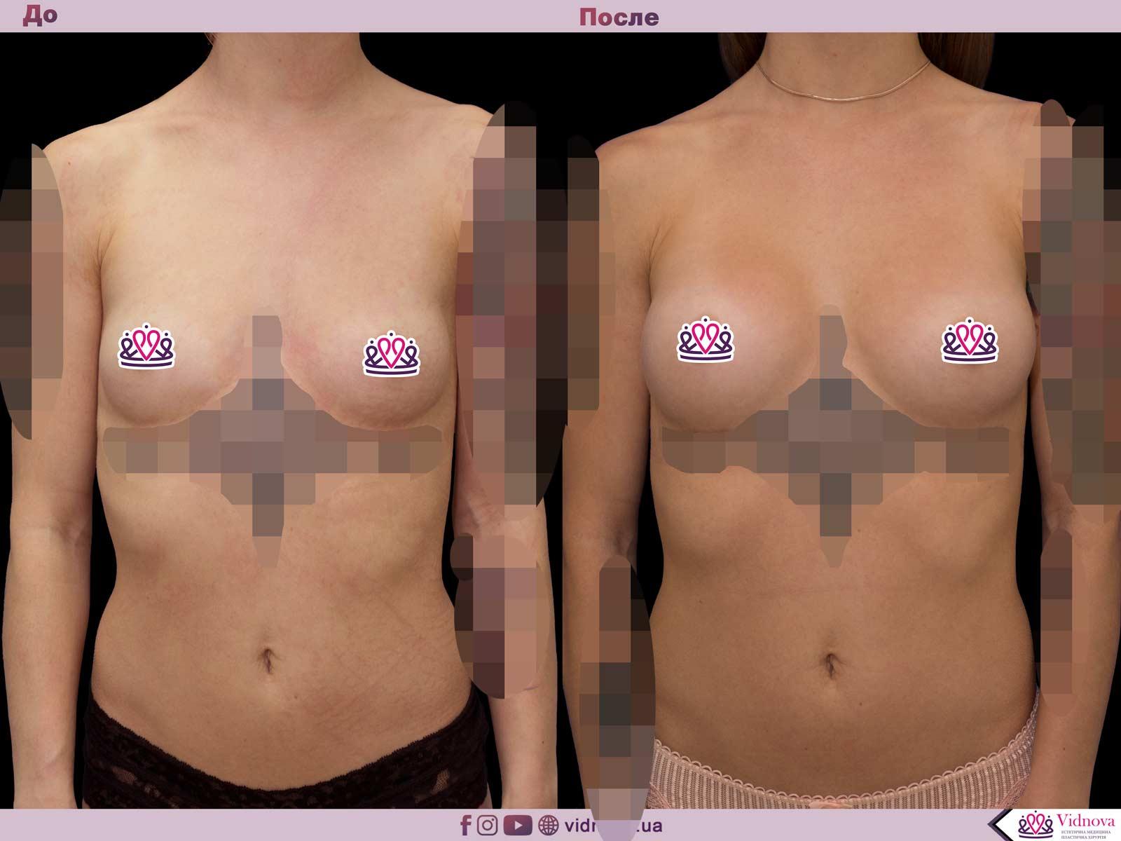 Увеличение груди: Фото ДО и ПОСЛЕ - Пример №37-1 - Клиника Vidnova
