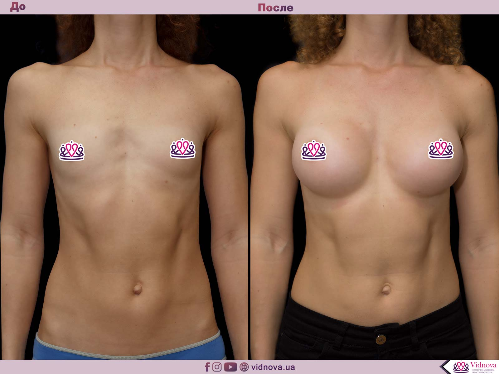 Увеличение груди: Фото ДО и ПОСЛЕ - Пример №36-1 - Клиника Vidnova