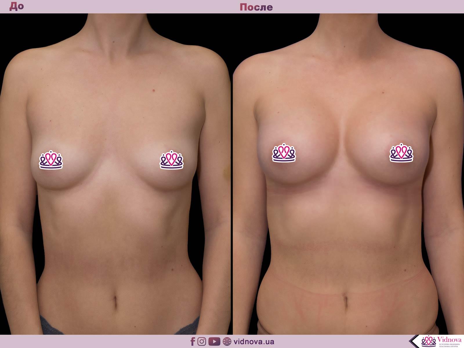 Увеличение груди: Фото ДО и ПОСЛЕ - Пример №40-1 - Клиника Vidnova