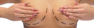 Увеличение груди: история проведения операции 1.jpg.pagespeed.ce .LQwaNh7Dvt 300x92 - клиника VIdnova