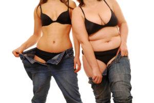 Липосакция – метод снижения веса? 1.jpg.pagespeed.ce .j9694x4J4h 300x201 - клиника VIdnova