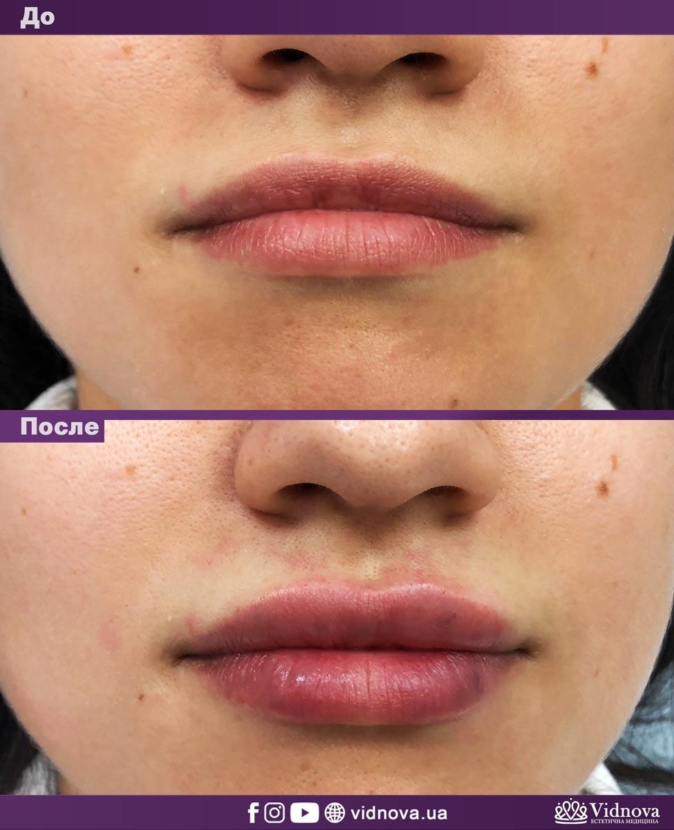 Увеличение губ: Фото До и После - Пример №8-2 - Клиника Vidnova