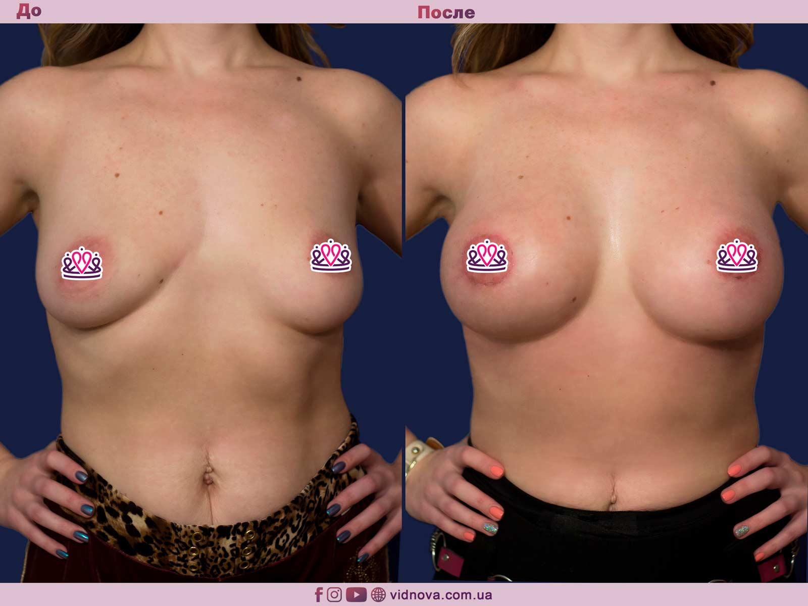 Увеличение груди: Фото ДО и ПОСЛЕ - Пример №77-1 - Клиника Vidnova