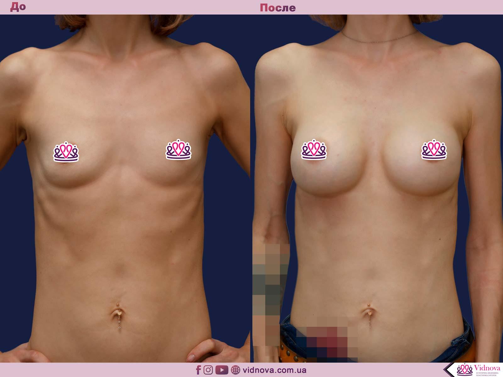 Увеличение груди: Фото ДО и ПОСЛЕ - Пример №65-1 - Клиника Vidnova