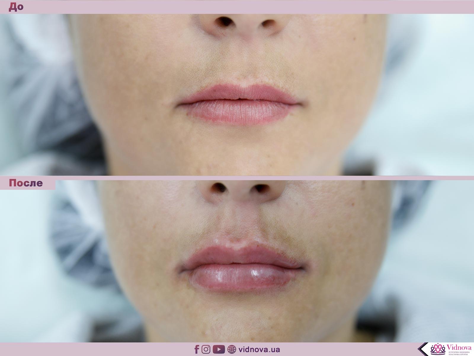Увеличение губ: Фото До и После - Пример №16-1 - Клиника Vidnova