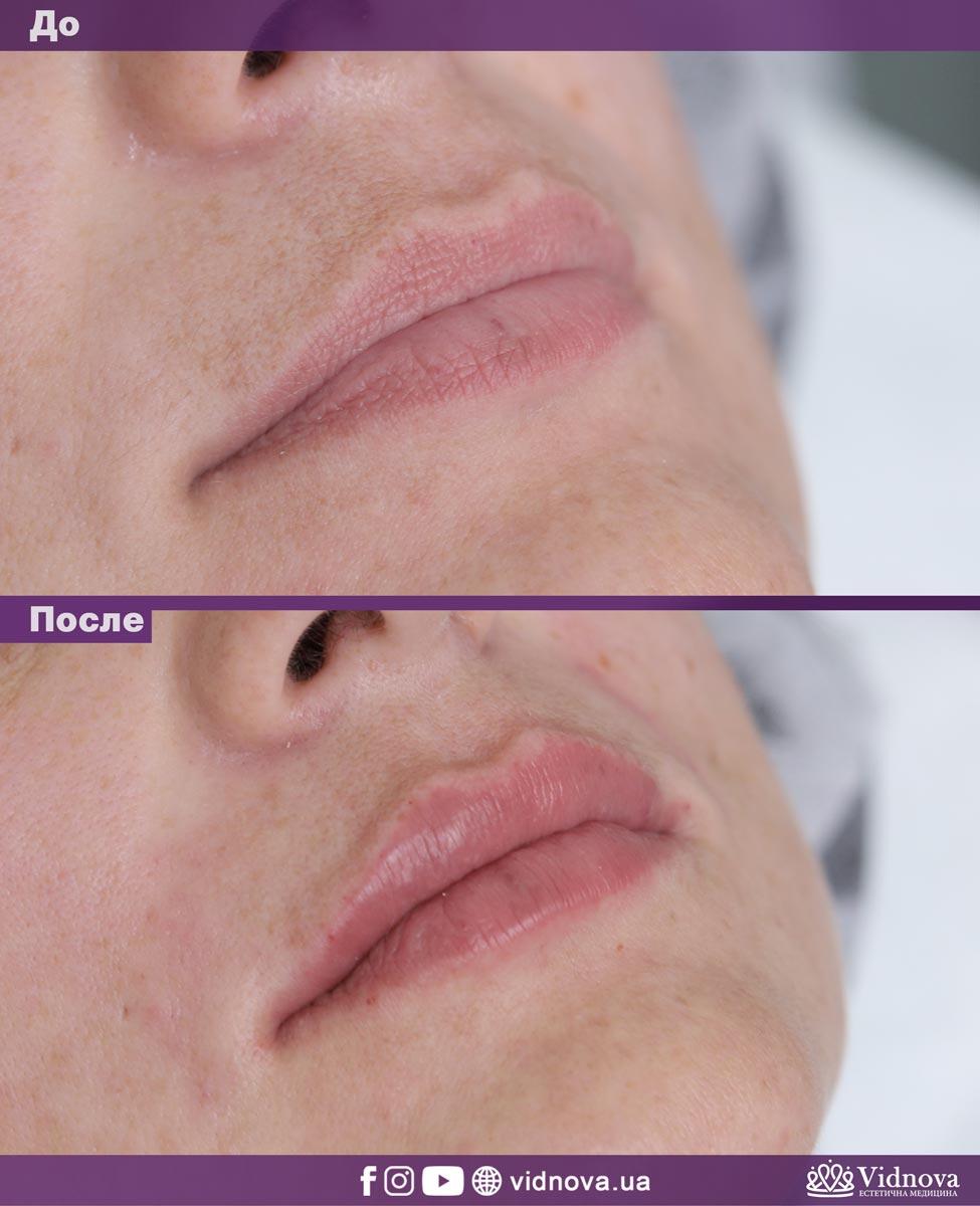 Увеличение губ: Фото До и После - Пример №10-1 - Клиника Vidnova