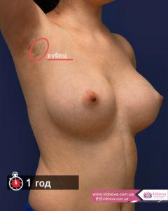 Грудь после маммопластики: через сутки, через месяц, через год 1god 240x300 - клиника VIdnova