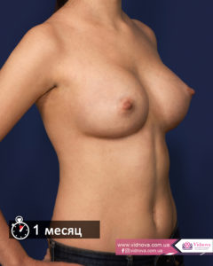 Грудь после маммопластики: через сутки, через месяц, через год 1mesyats 240x300 - клиника VIdnova