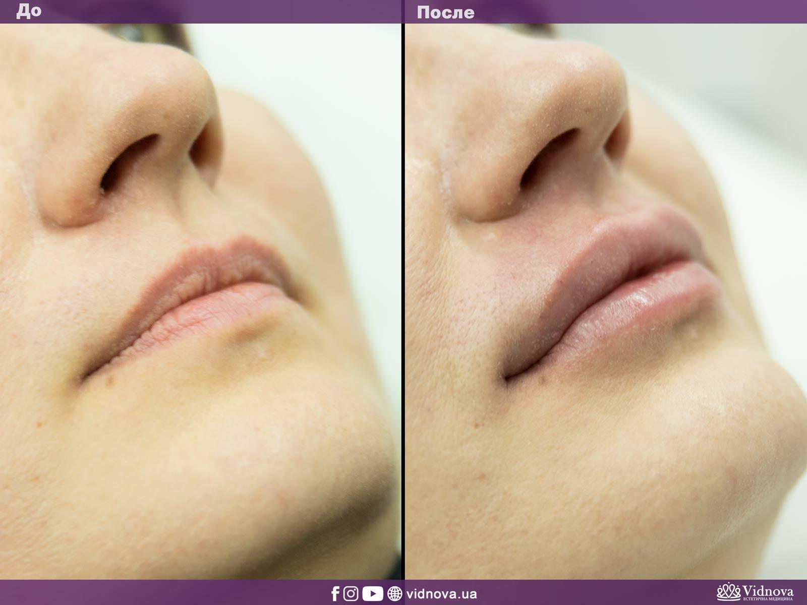 Увеличение губ: Фото До и После - Пример №13-2 - Клиника Vidnova