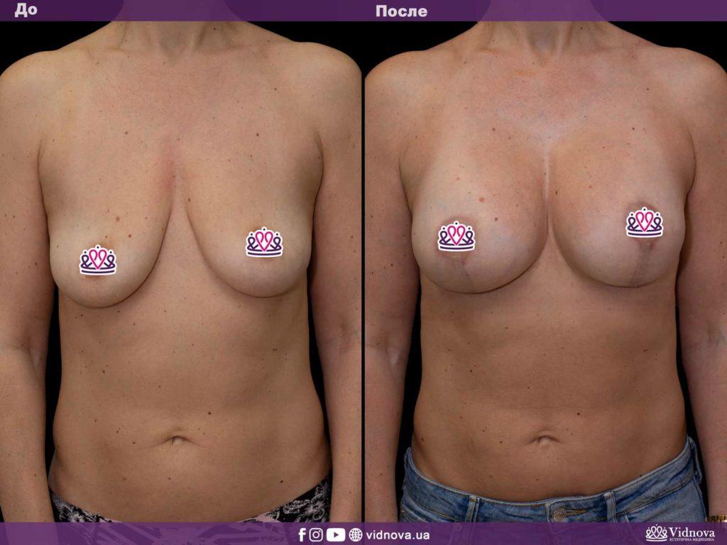 Подтяжка груди (мастопексия) 1v 1 4 1024x768 - клиника VIdnova