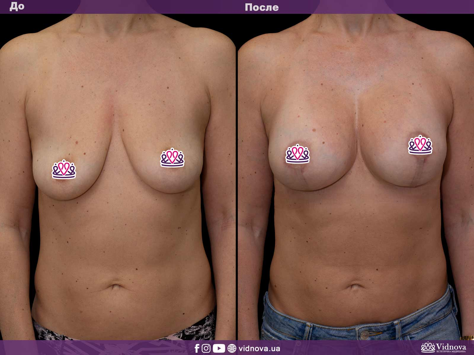 Подтяжка груди: Фото ДО и ПОСЛЕ - Пример №7-1 - Клиника Vidnova