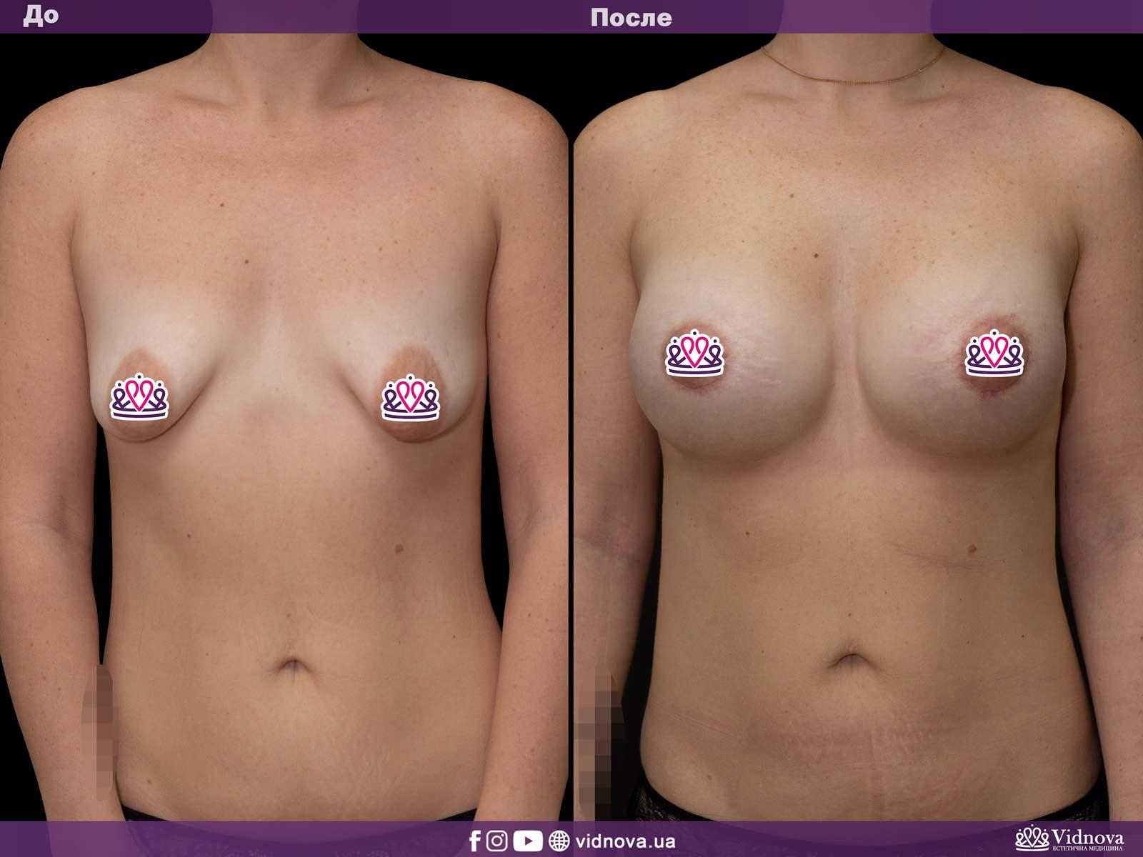 Подтяжка груди: Фото ДО и ПОСЛЕ - Пример №17-1 - Клиника Vidnova