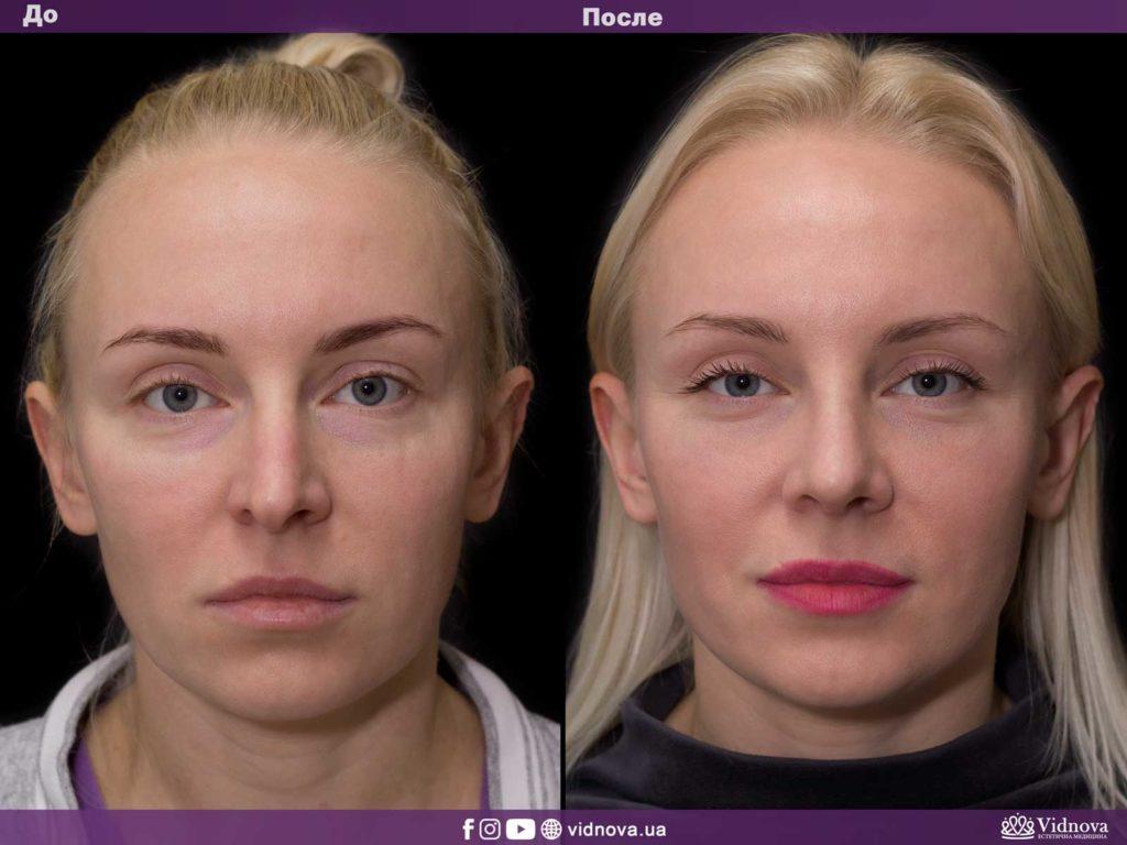 Пластика носа (ринопластика) 1v 1024x768 - клиника VIdnova