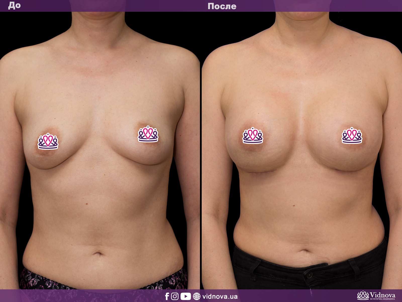 Увеличение груди: Фото ДО и ПОСЛЕ - Пример №30-1 - Клиника Vidnova