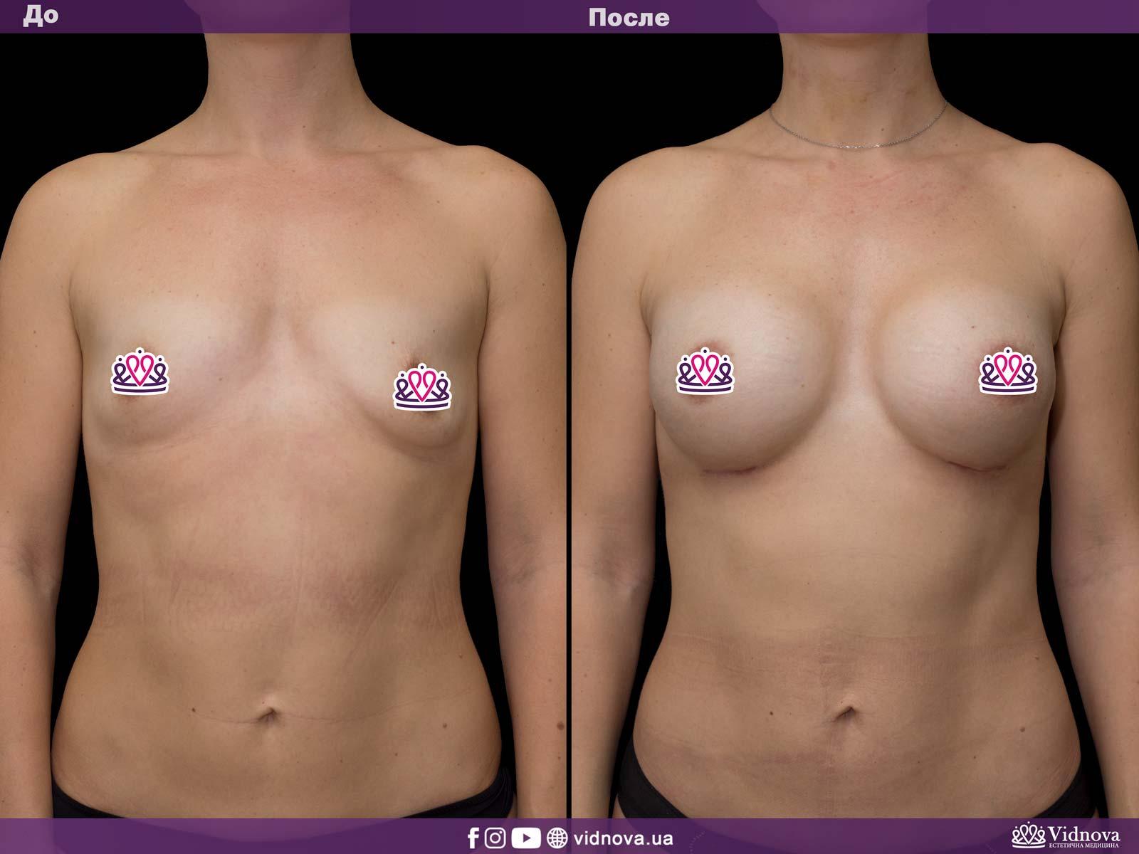 Увеличение груди: Фото ДО и ПОСЛЕ - Пример №34-1 - Клиника Vidnova