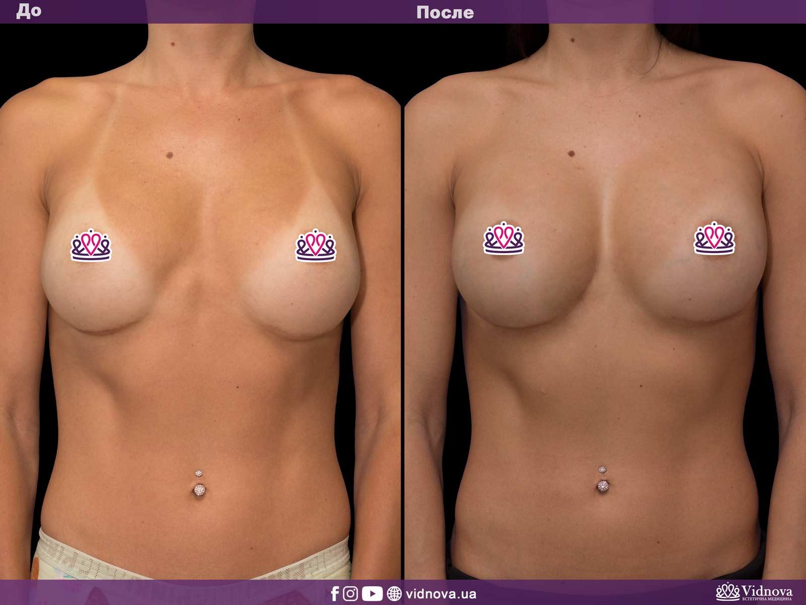 Увеличение груди: Фото ДО и ПОСЛЕ - Пример №27-1 - Клиника Vidnova