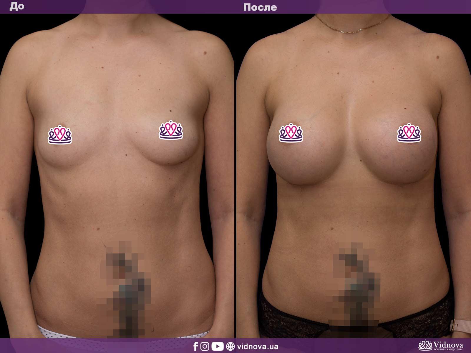 Увеличение груди: Фото ДО и ПОСЛЕ - Пример №39-1 - Клиника Vidnova