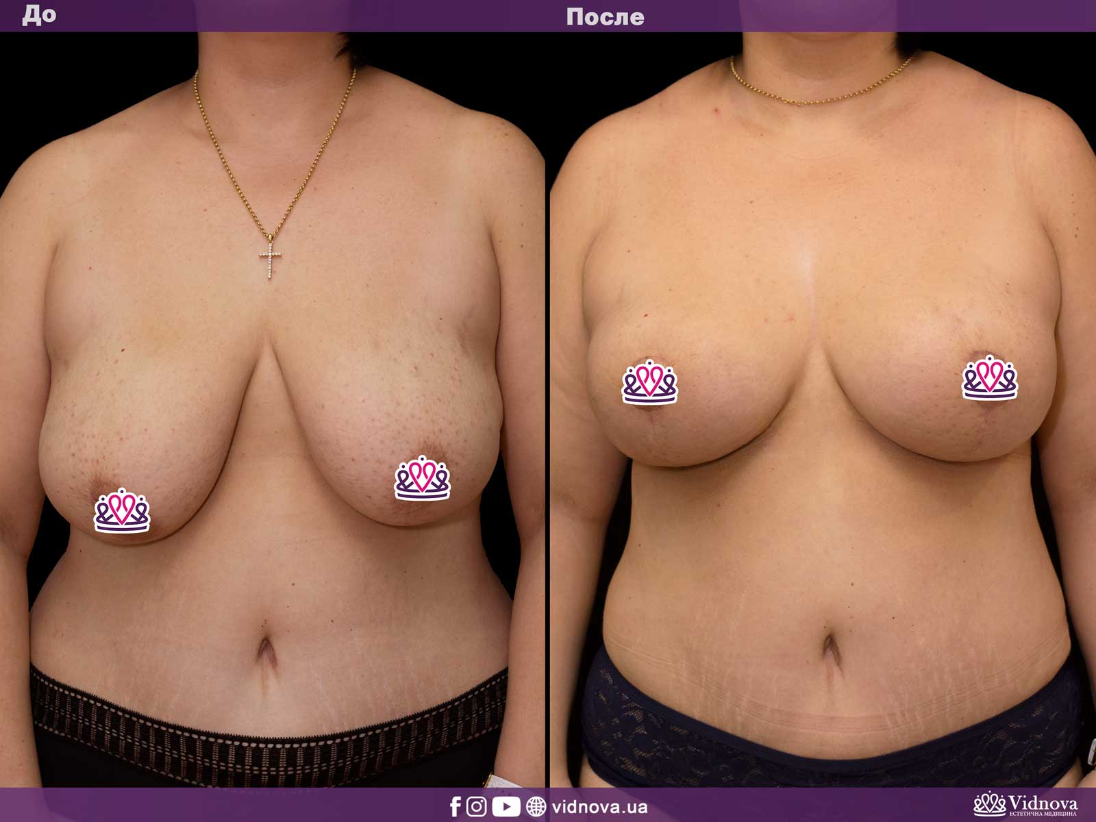 Подтяжка груди: Фото ДО и ПОСЛЕ - Пример №18-1 - Клиника Vidnova