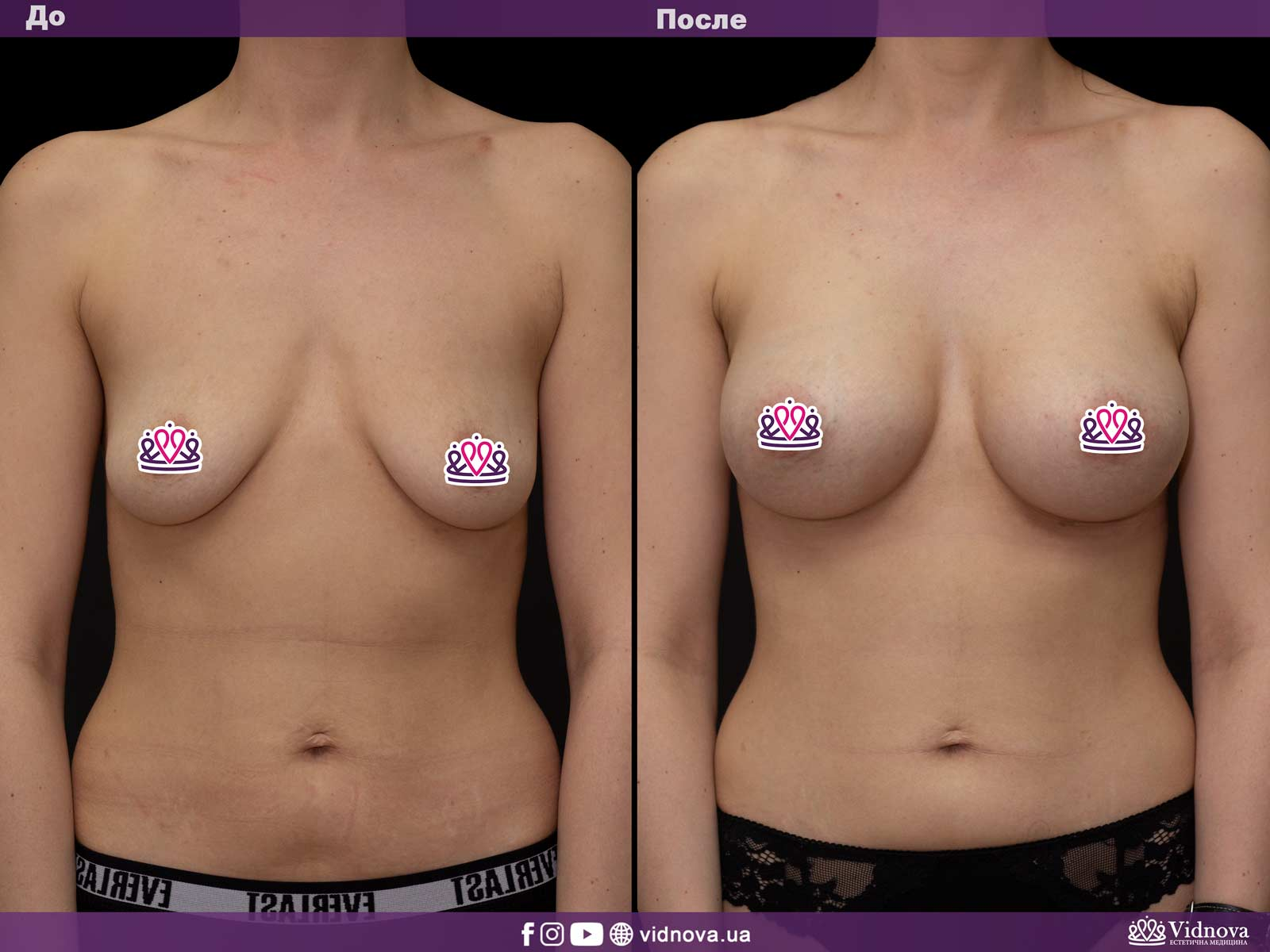 Увеличение груди: Фото ДО и ПОСЛЕ - Пример №12-1 - Клиника Vidnova
