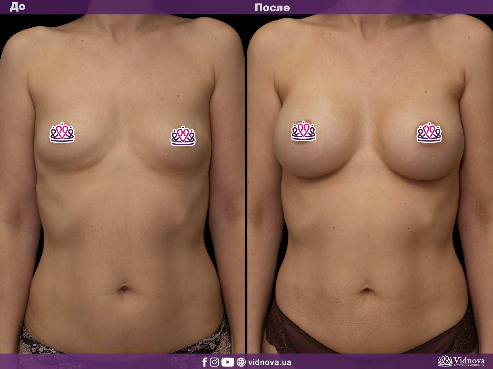 Увеличение груди: Фото ДО и ПОСЛЕ - Пример №15-1 - Клиника Vidnova