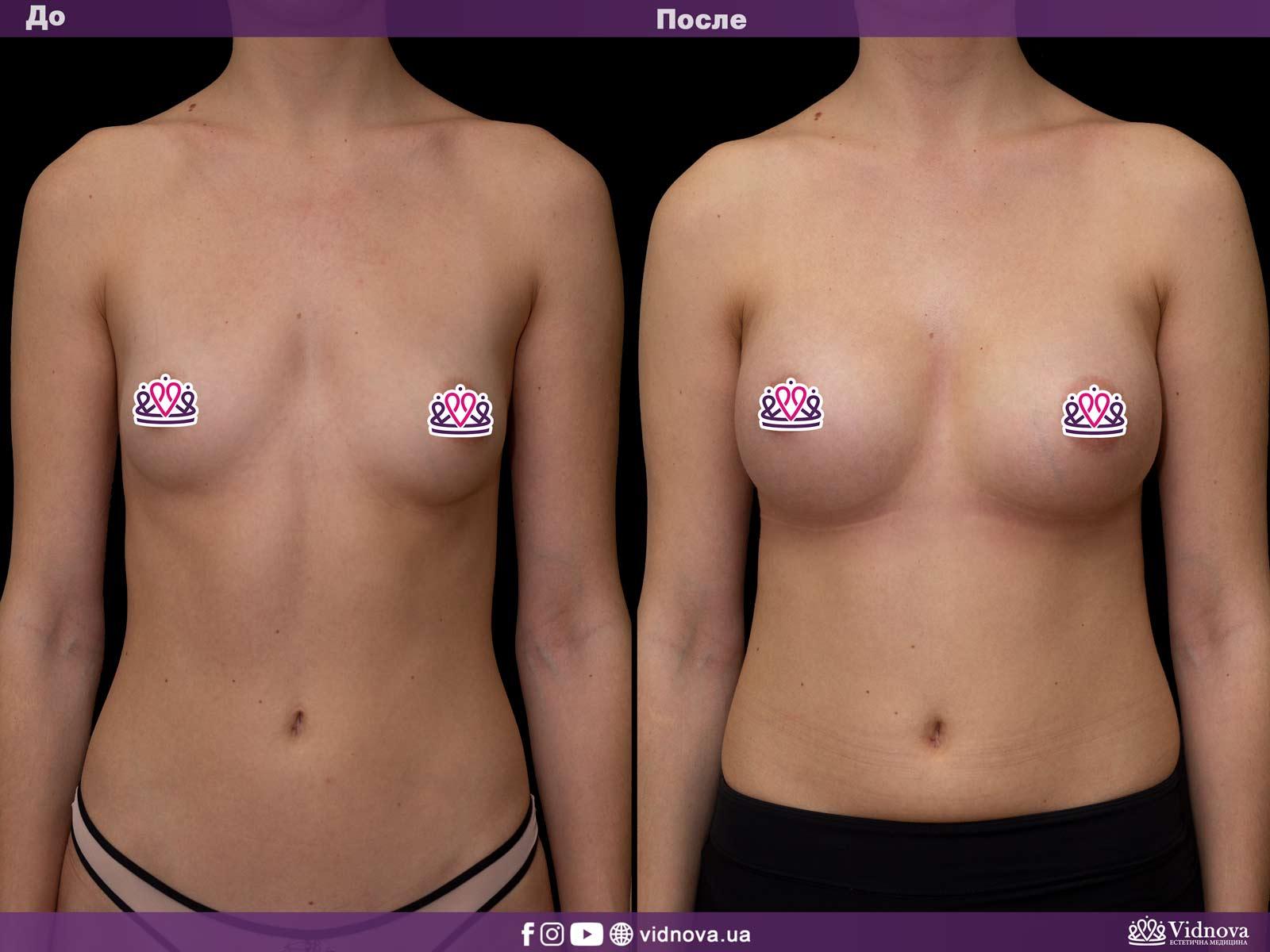 Увеличение груди: Фото ДО и ПОСЛЕ - Пример №25-1 - Клиника Vidnova
