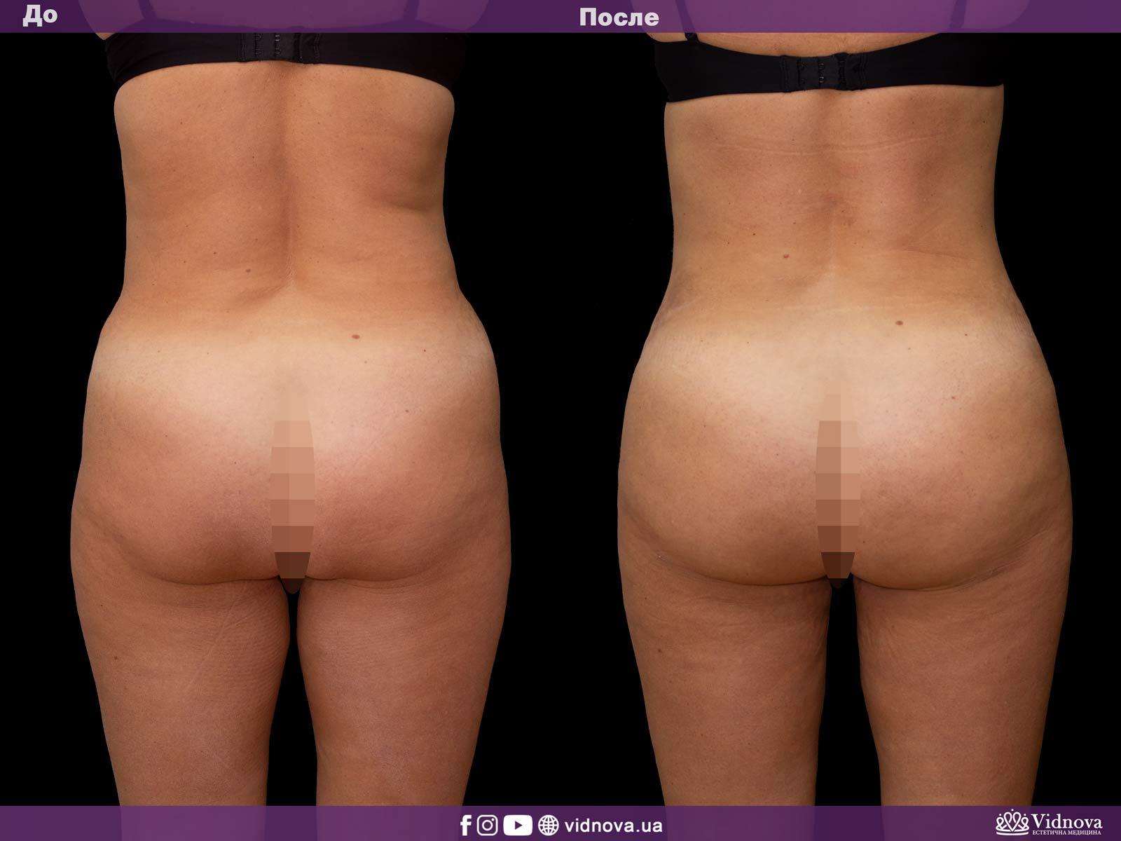 Липоскульптурирование: Фото До и После - Пример №2-1 - Клиника Vidnova