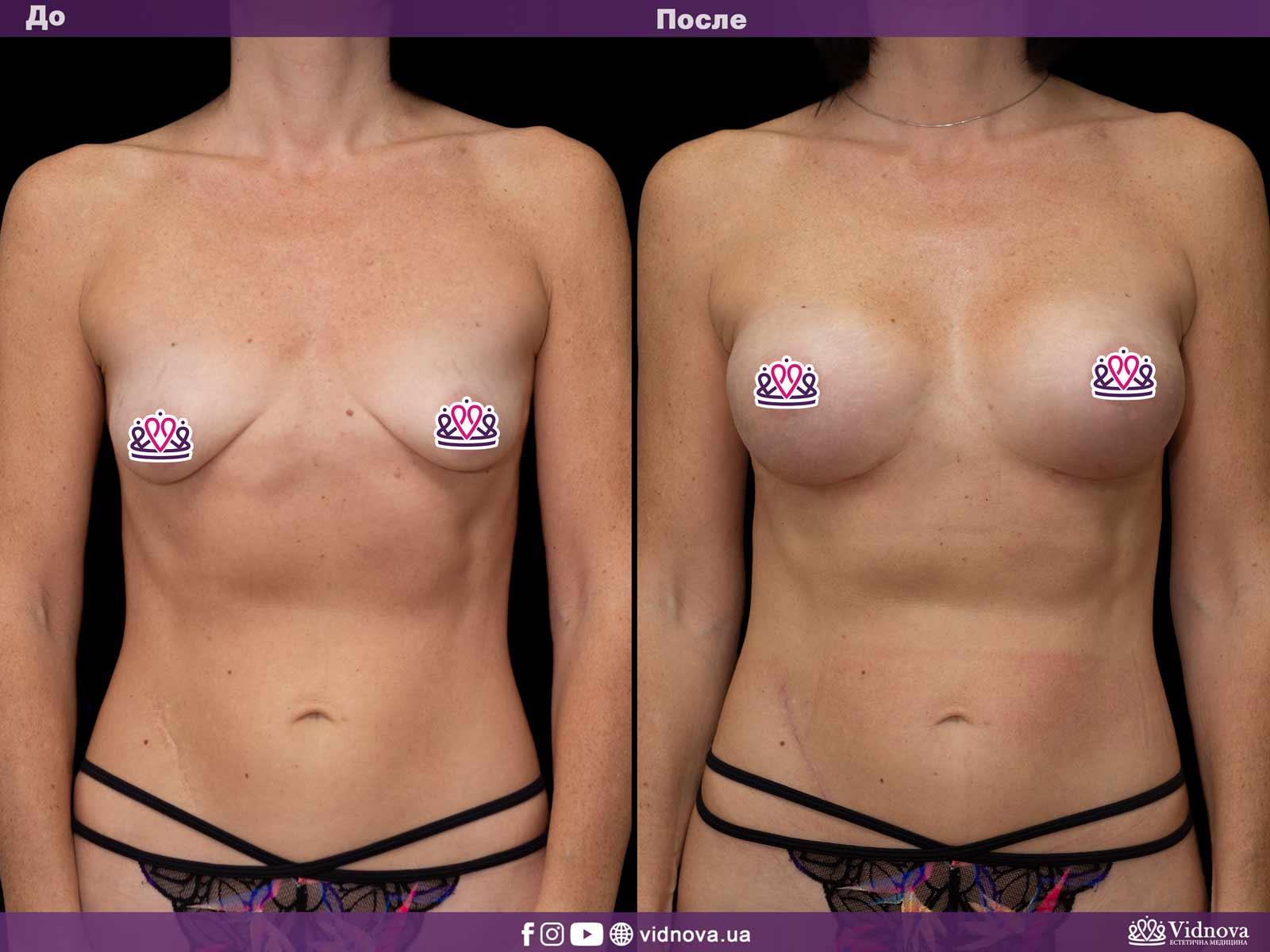 Увеличение груди: Фото ДО и ПОСЛЕ - Пример №38-1 - Клиника Vidnova