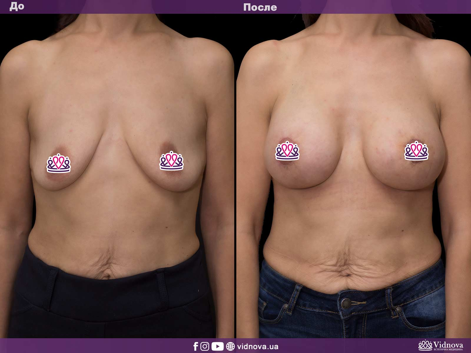 Подтяжка груди: Фото ДО и ПОСЛЕ - Пример №16-1 - Клиника Vidnova