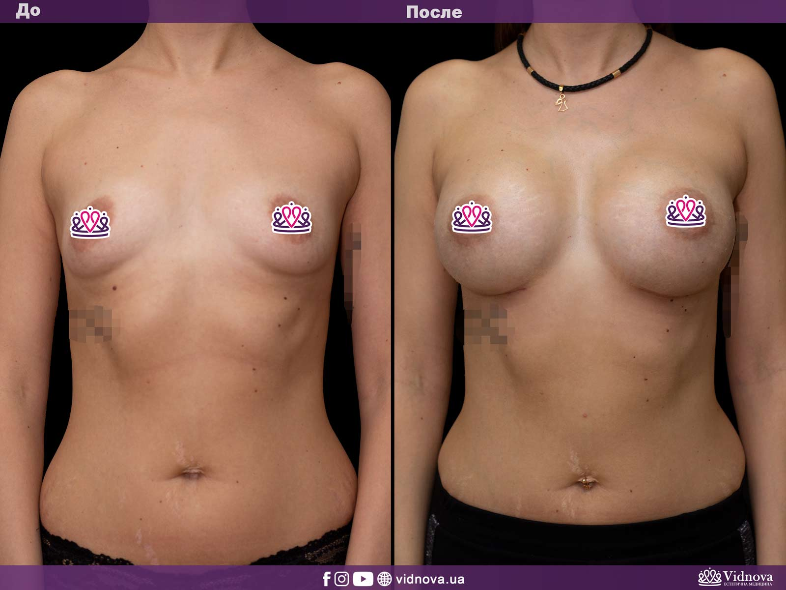 Увеличение груди: Фото ДО и ПОСЛЕ - Пример №19-1 - Клиника Vidnova