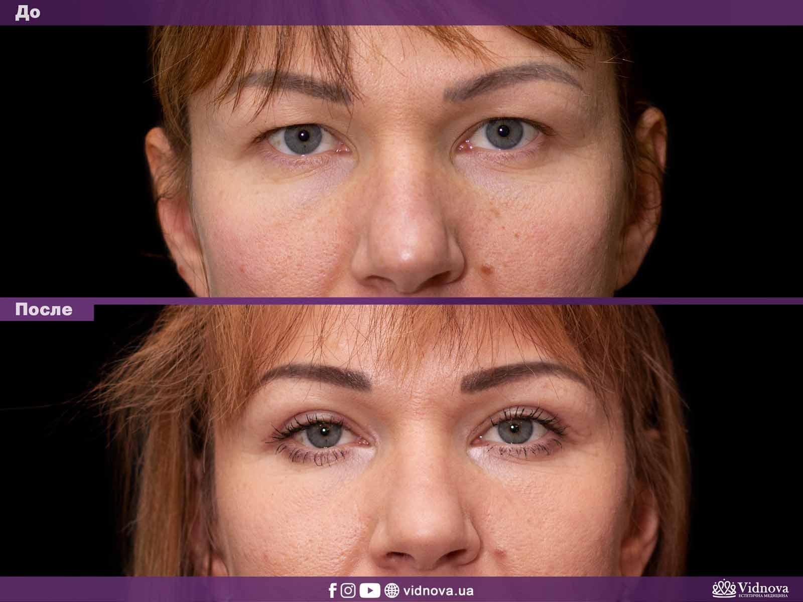 Блефаропластика: Фото До и После - Пример №27-1 - Клиника Vidnova