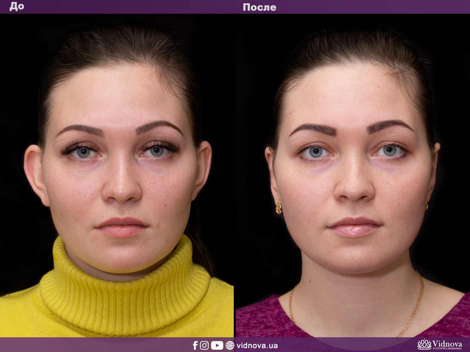 Отопластика: Фото До и После - Пример №2-1 - Клиника Vidnova
