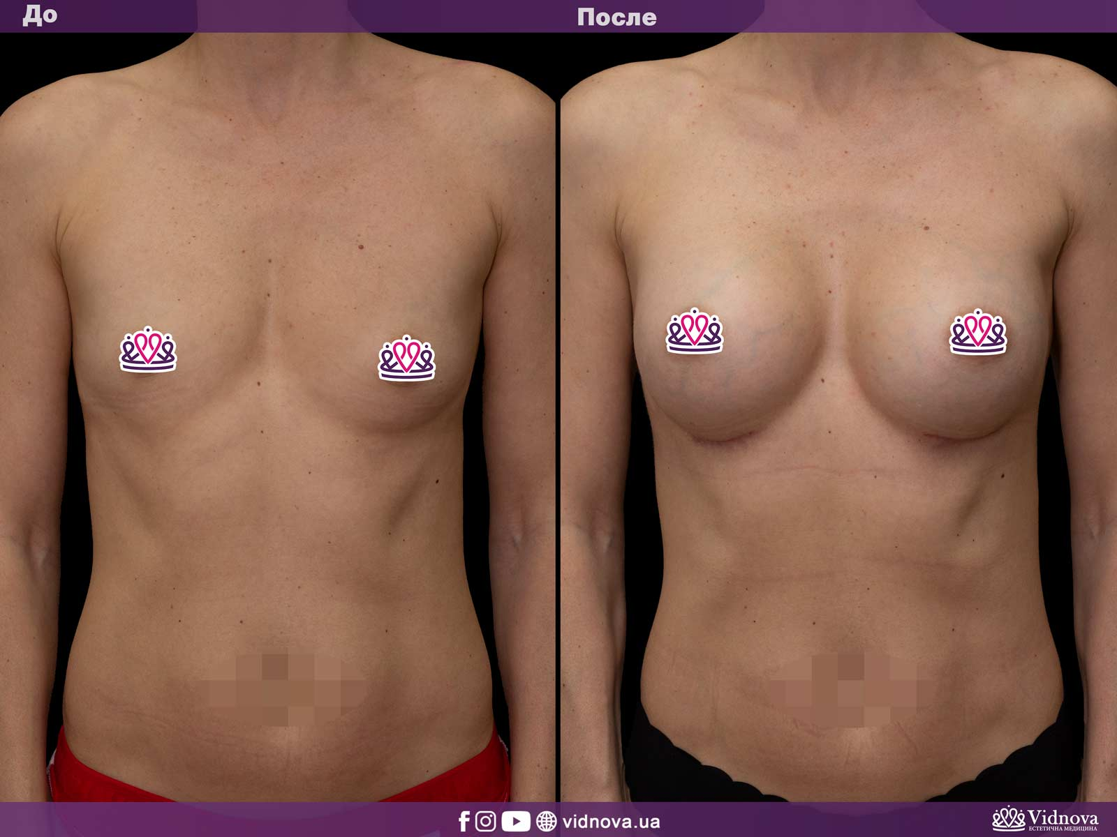 Увеличение груди: Фото ДО и ПОСЛЕ - Пример №16-1 - Клиника Vidnova