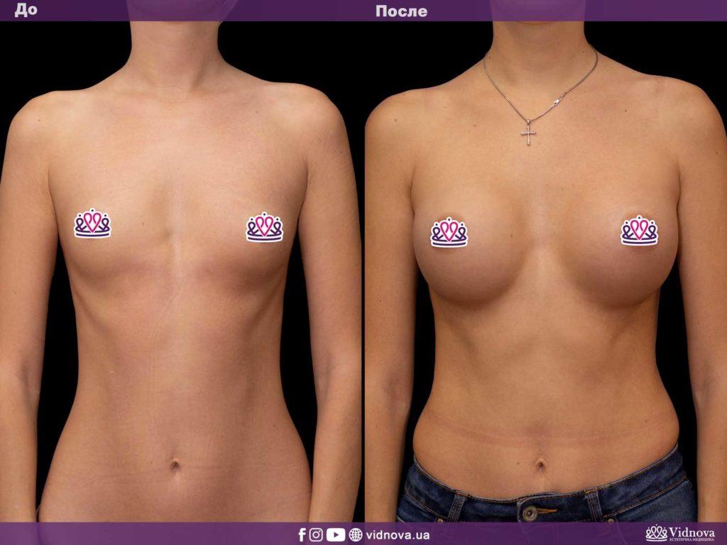 Увеличение груди до или после родов: решаем диллему 1v 4 1024x768 - клиника VIdnova