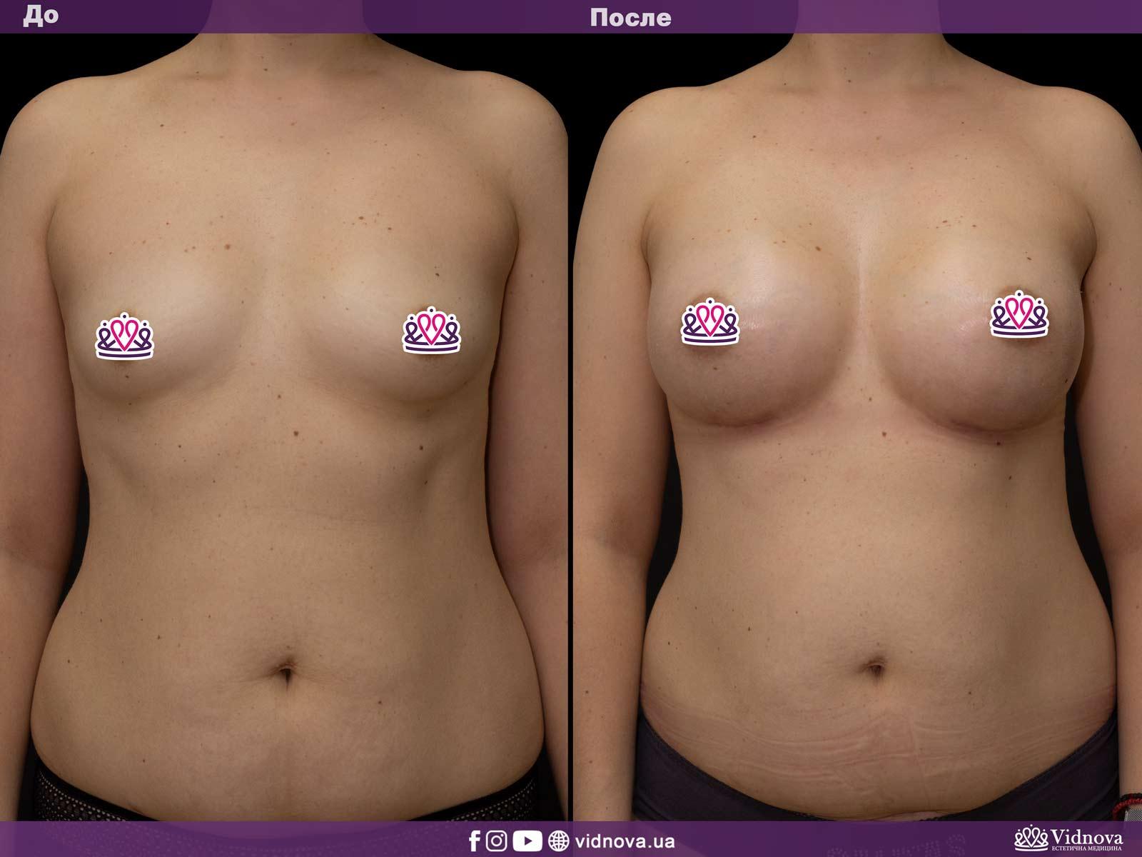 Увеличение груди: Фото ДО и ПОСЛЕ - Пример №23-1 - Клиника Vidnova