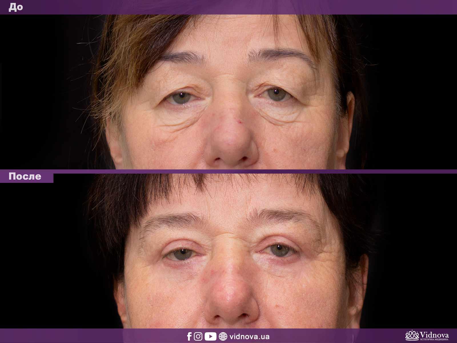 Блефаропластика: Фото До и После - Пример №28-1 - Клиника Vidnova