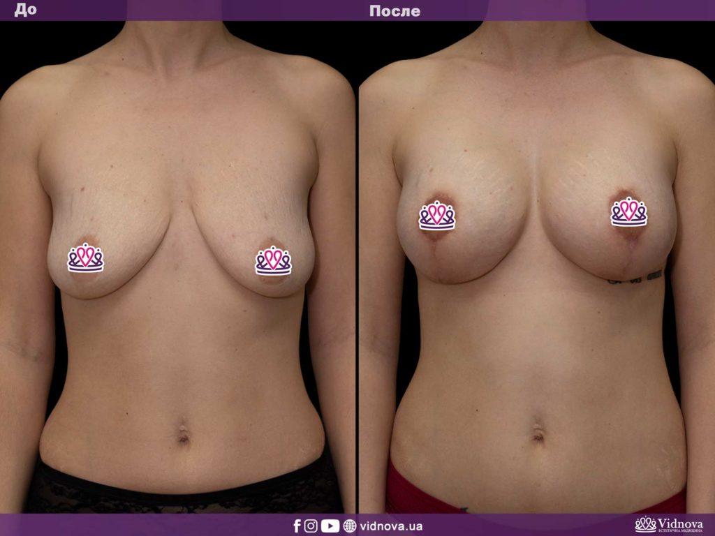 Подтяжка груди с имплантатами B-lite