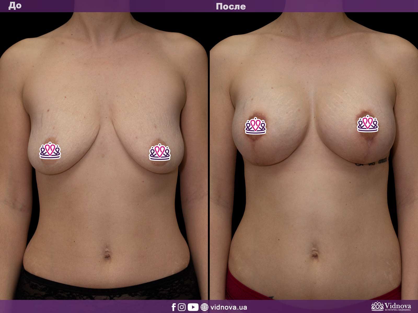 Подтяжка груди: Фото ДО и ПОСЛЕ - Пример №14-1 - Клиника Vidnova