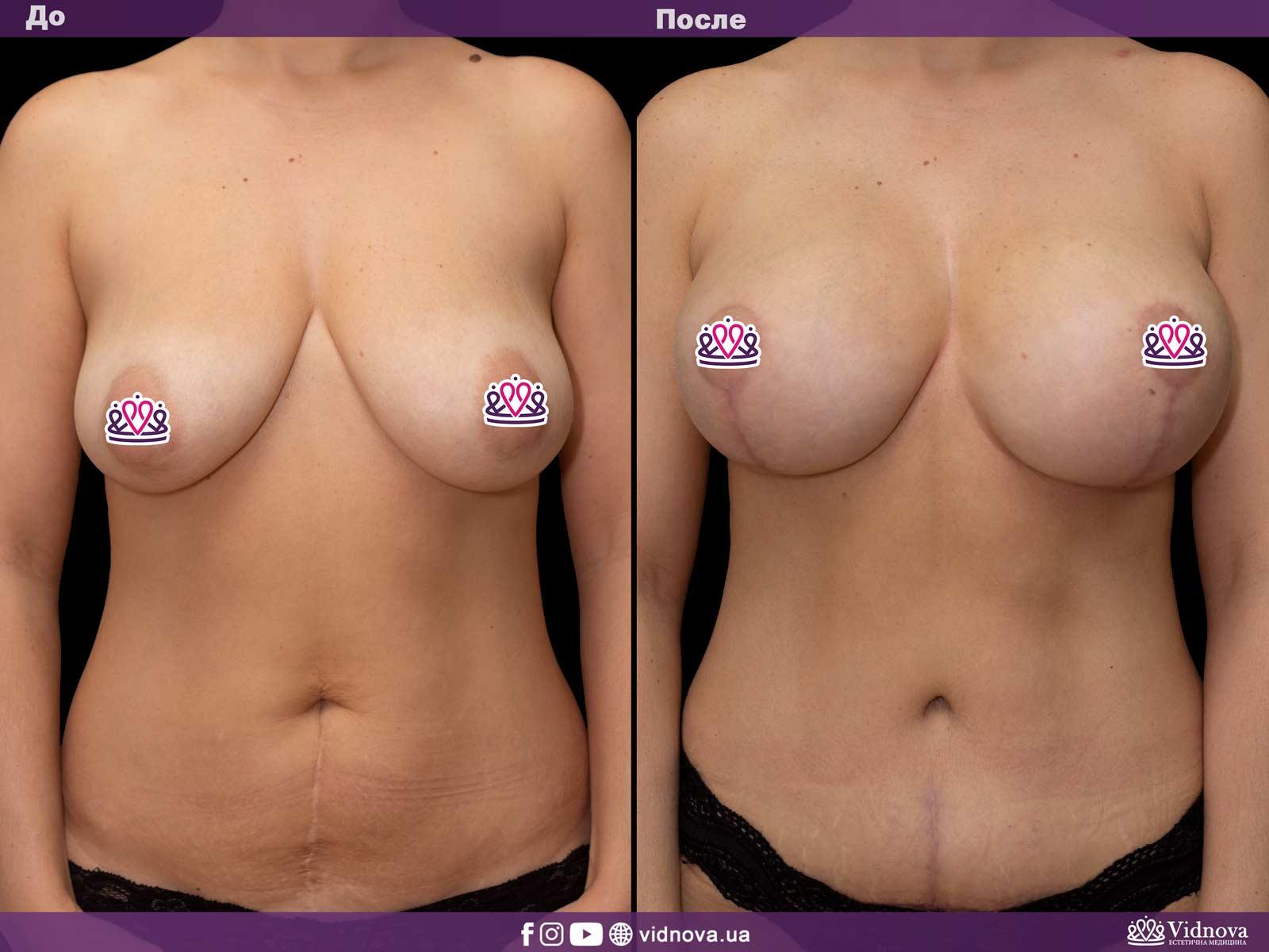 Совмещенные операции: Фото До и После - Пример №3-4 - Клиника Vidnova