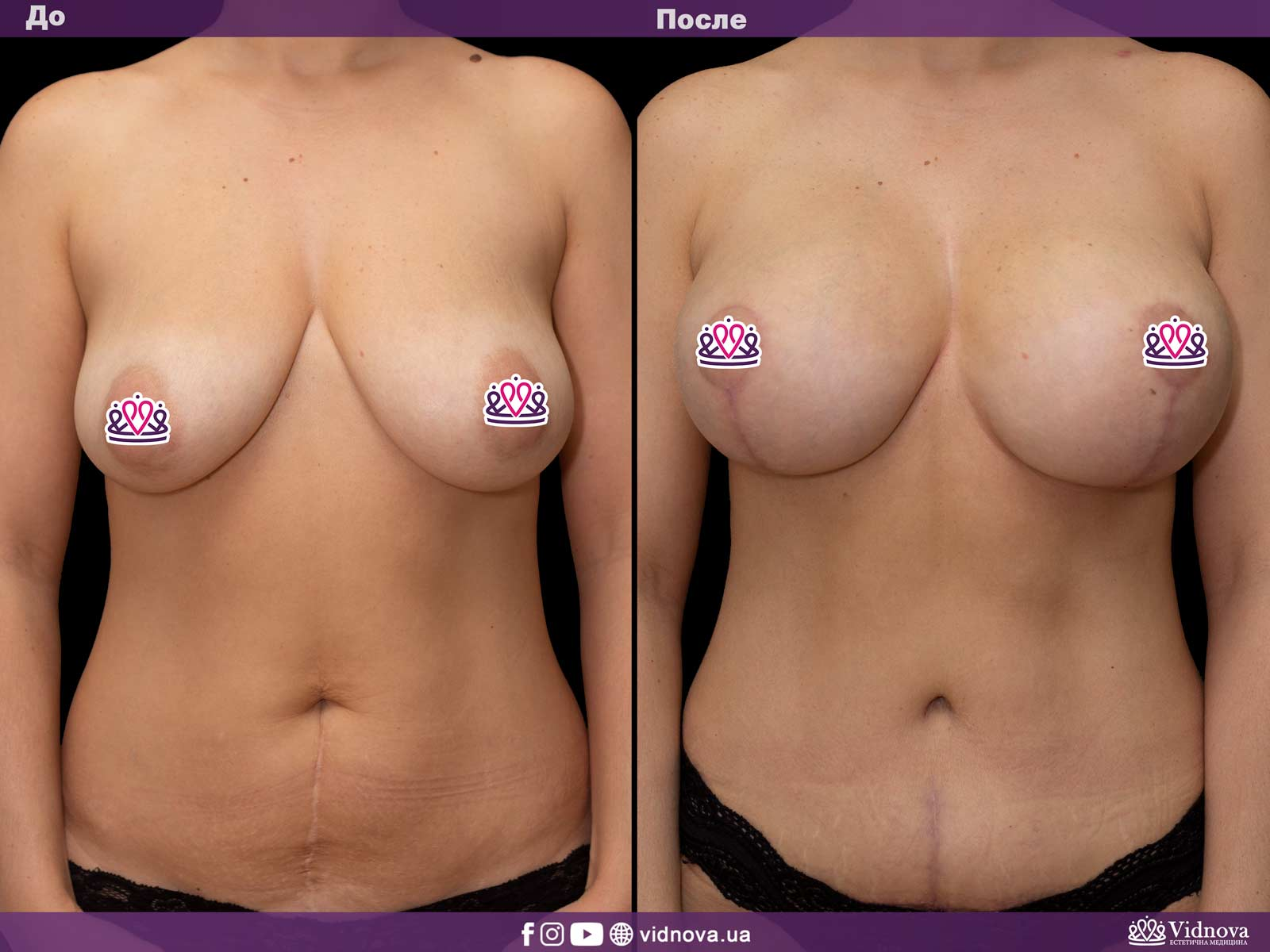 Подтяжка груди: Фото ДО и ПОСЛЕ - Пример №10-2 - Клиника Vidnova