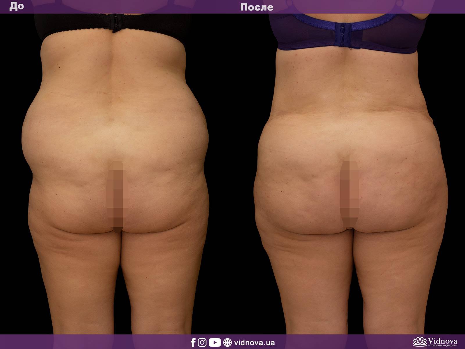 Липоскульптурирование: Фото До и После - Пример №1-1 - Клиника Vidnova