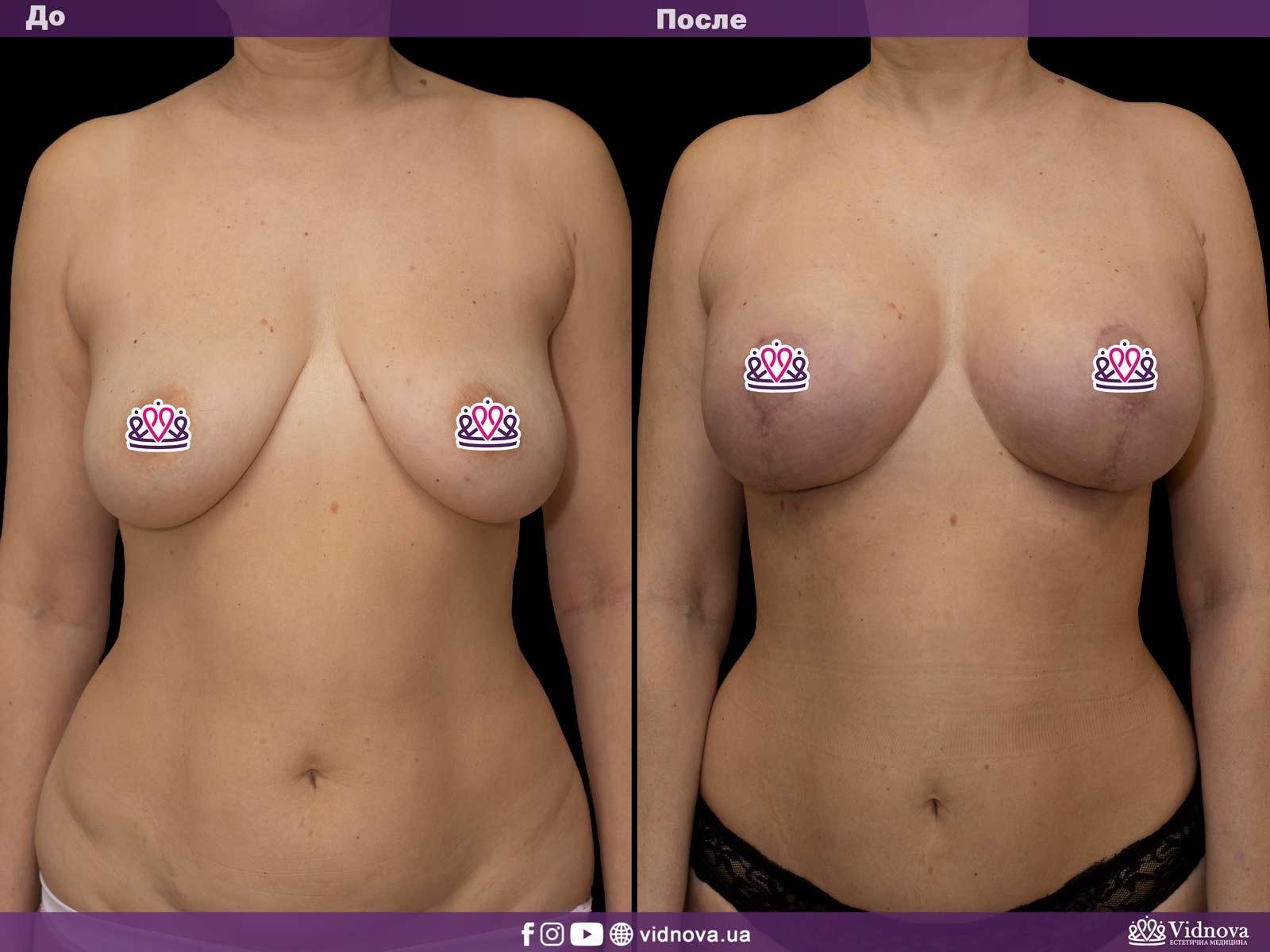 Подтяжка груди: Фото ДО и ПОСЛЕ - Пример №15-1 - Клиника Vidnova