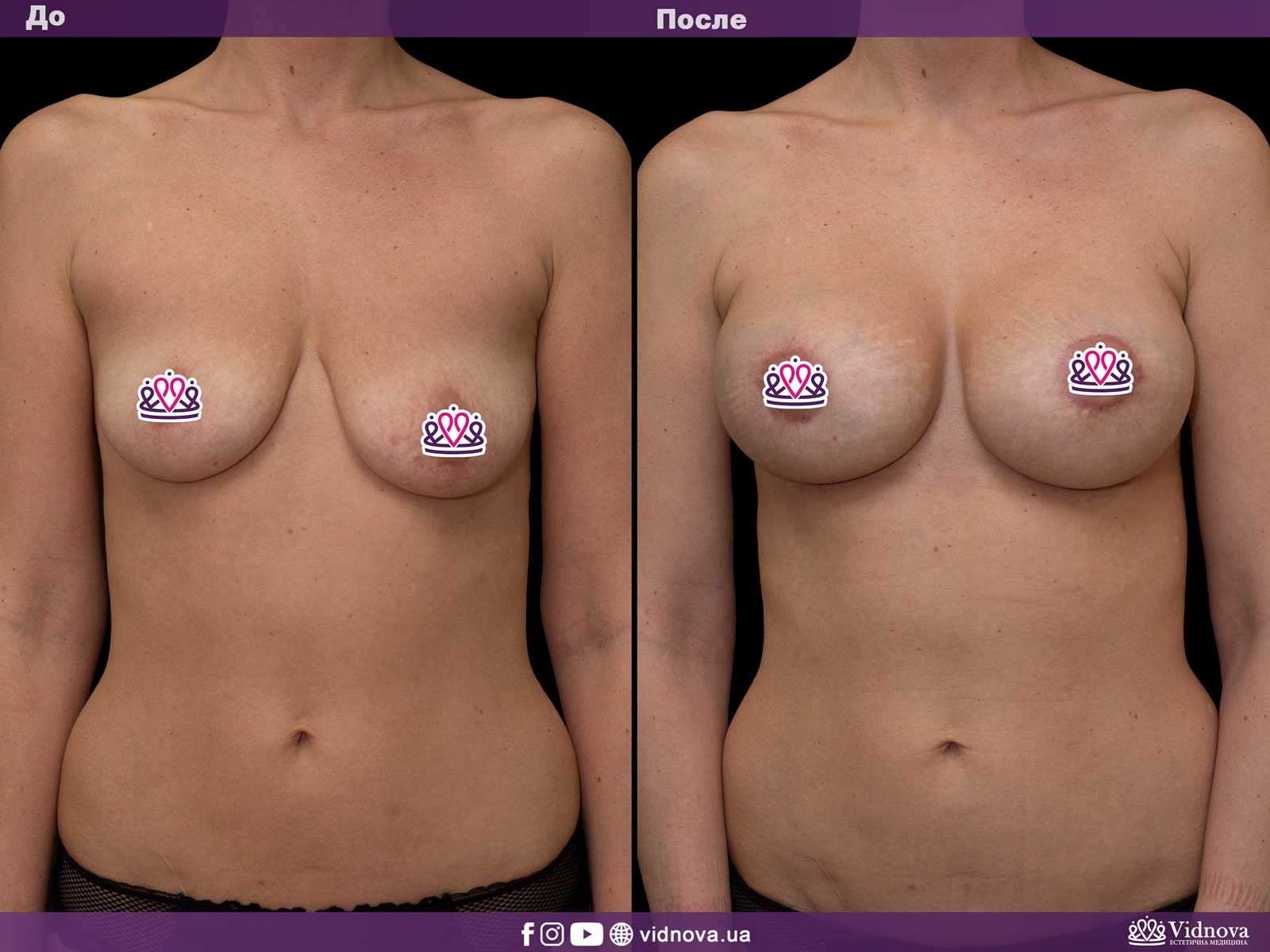 Подтяжка груди: Фото ДО и ПОСЛЕ - Пример №13-1 - Клиника Vidnova