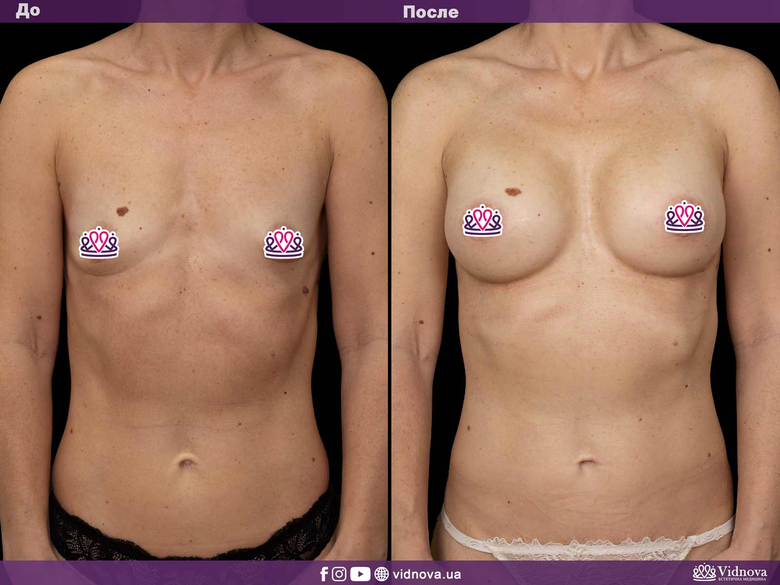 Увеличение груди: Фото ДО и ПОСЛЕ - Пример №20-1 - Клиника Vidnova