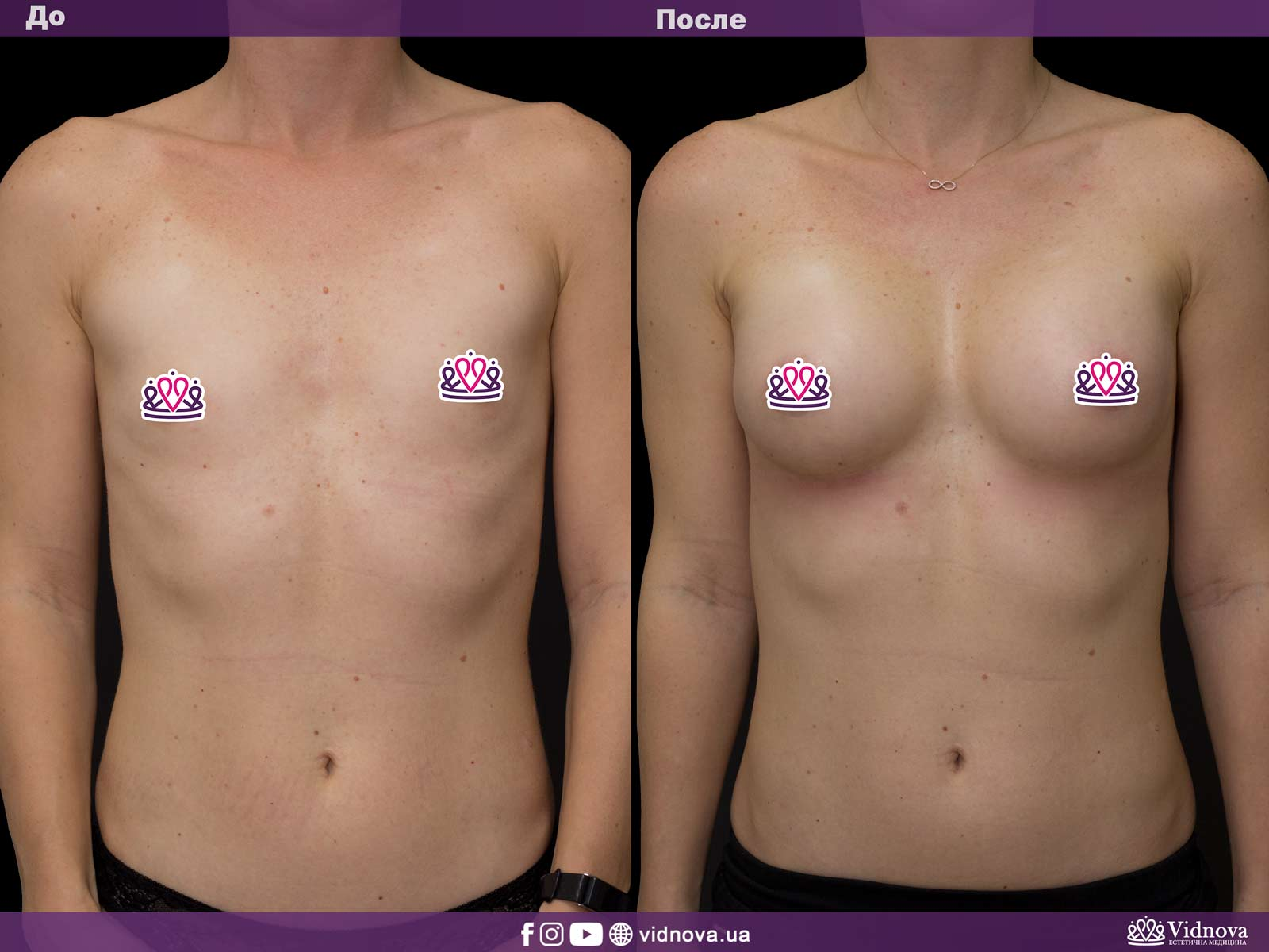 Увеличение груди: Фото ДО и ПОСЛЕ - Пример №29-1 - Клиника Vidnova