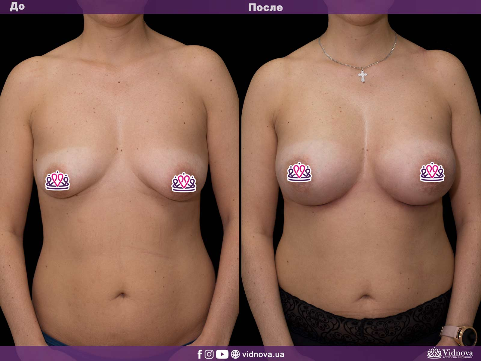 Увеличение груди: Фото ДО и ПОСЛЕ - Пример №31-1 - Клиника Vidnova