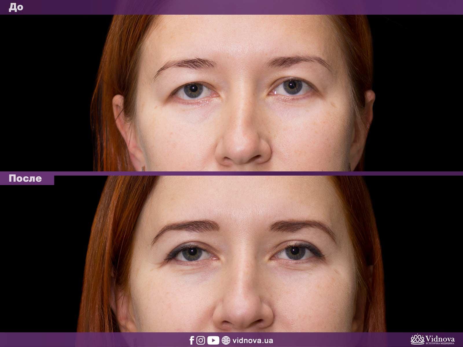Блефаропластика: Фото До и После - Пример №34-1 - Клиника Vidnova