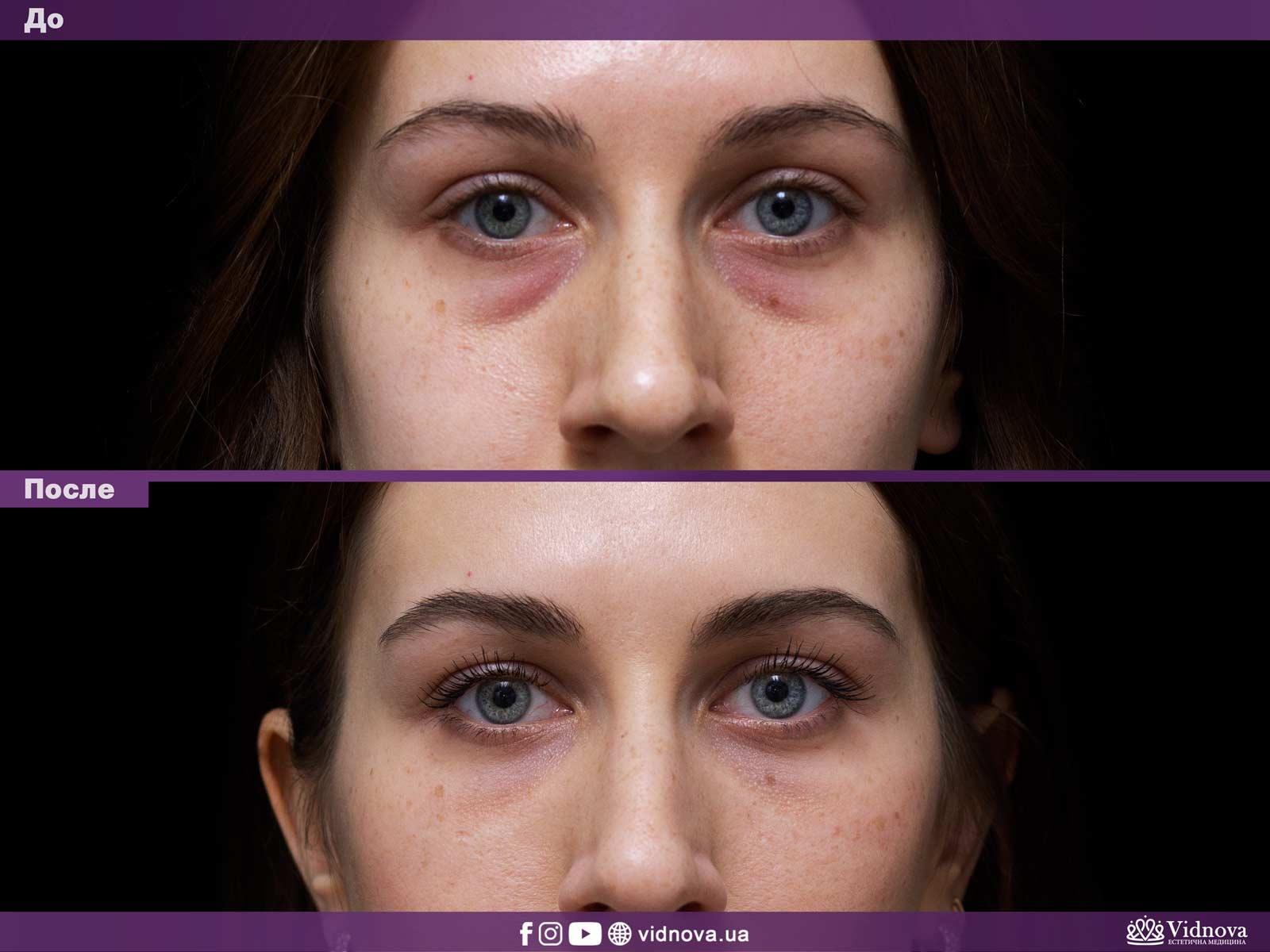Блефаропластика: Фото До и После - Пример №8-1 - Клиника Vidnova