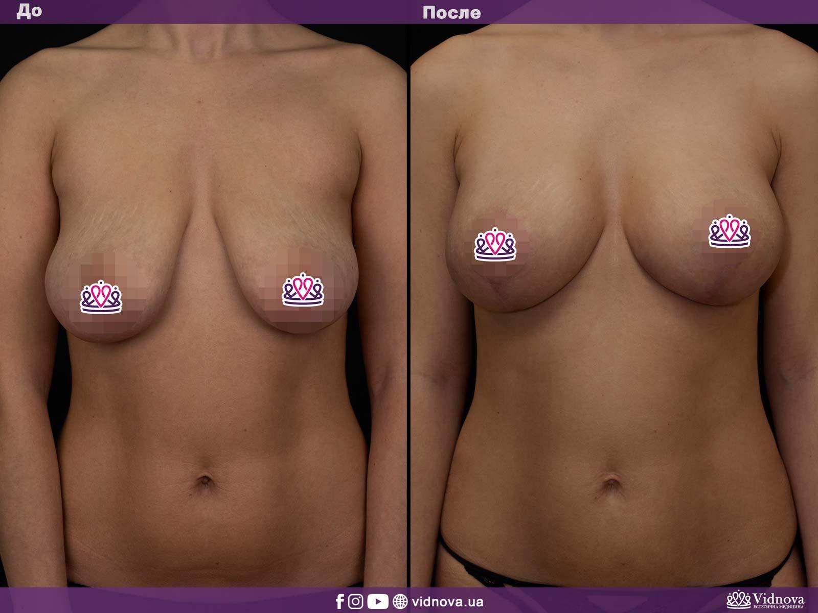 Подтяжка груди: Фото ДО и ПОСЛЕ - Пример №1-1 - Клиника Vidnova