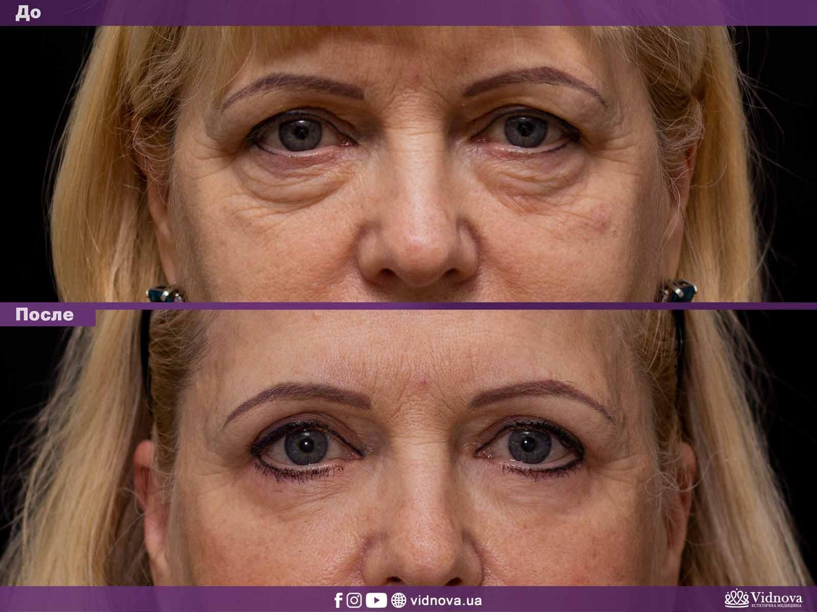 Блефаропластика: Фото До и После - Пример №1-1 - Клиника Vidnova